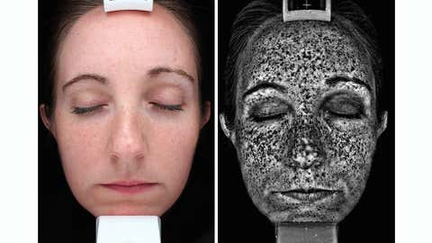 Here, a test subject at Canfield Scientific sits for a VISIA® Complexion Analysis System scan, which compares the skin as it appears in normal lighting to ultraviolet and digitally processed images that show subsurface spots and skin damage. (Canfield Imaging Systems)