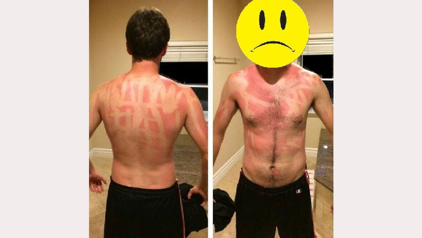 Sunscreen Fails That'll Remind You To Apply Carefully This July Fourth Weekend