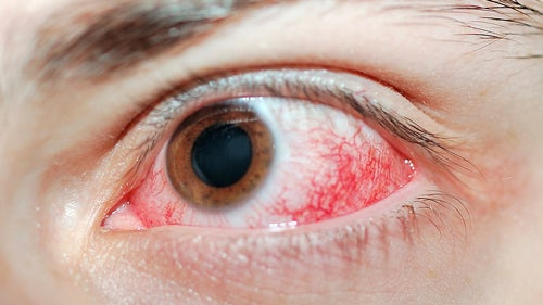 Chlorine Is Not To Blame For Your Pool Red Eye Urine Is