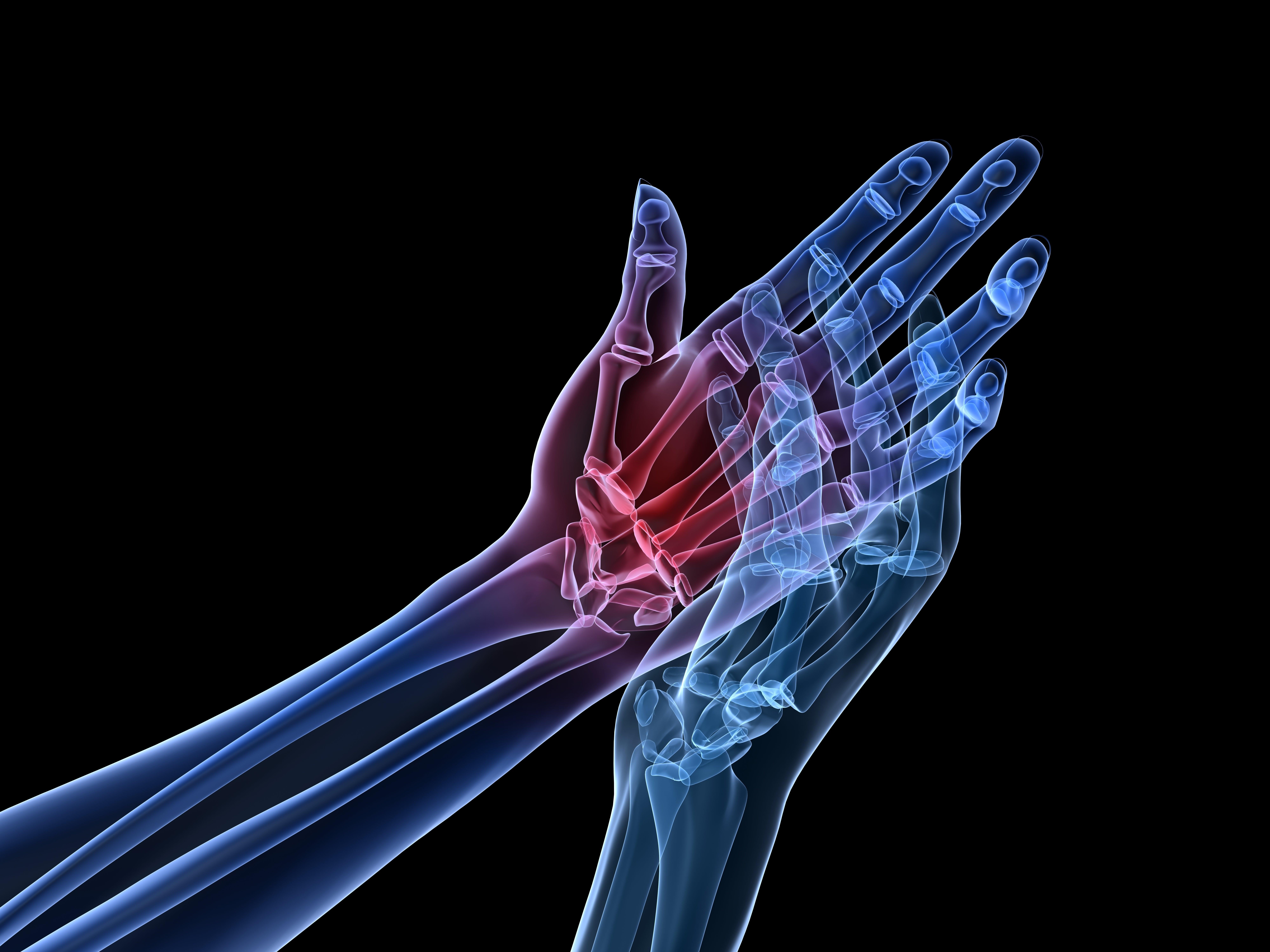 relationship between barometric pressure and arthritis