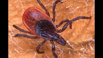 Weekend Adventure: Ticks and Lyme Disease