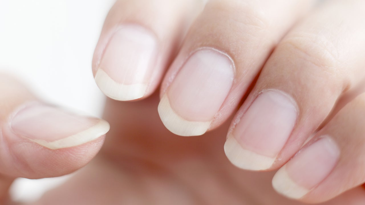 What Are Your Nails Trying To Tell You?