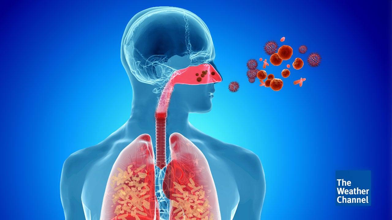 Erste Todesfälle: Grippewelle startet früher