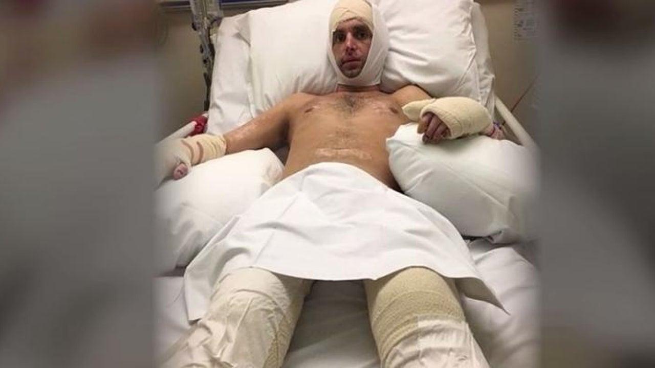 Er diagnostizierte Grippe - dann wurden ihm die Beine amputiert