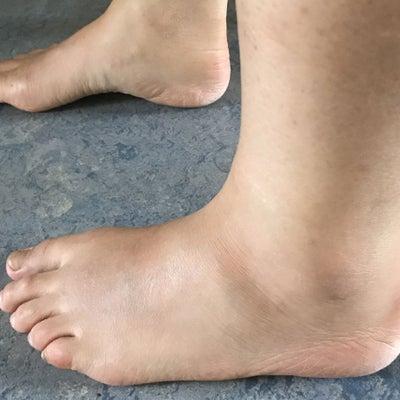 Dicke knöchel abends Geschwollene Beine