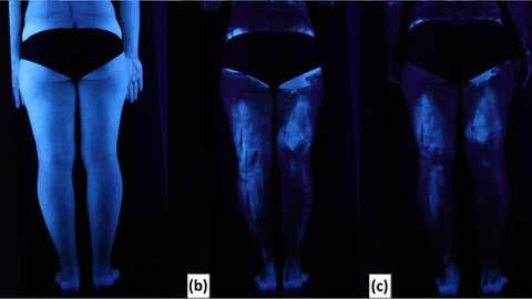 La luz negra ilumina un cuerpo sin crema solar (izquierda), el mismo con una capa y con dos, a la derecha. / Heerfordt IM, Torsnes LR, Philipsen PA, Wulf HC (2018) Sunscreen use optimized by two consecutive applications. PLoS ONE / CC BY 4.0